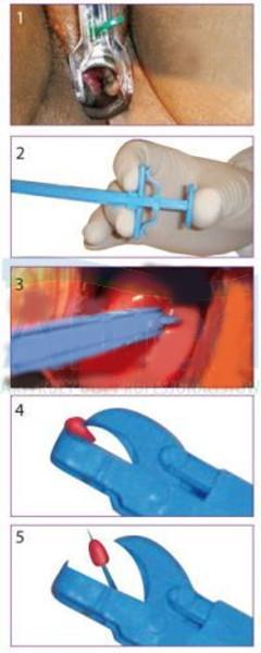 Kleszczyki do biopsji szyjki macicy, GYN&PUSH, jednorazowe, sterylne